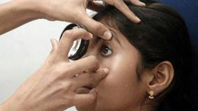 madras-eye-precautions