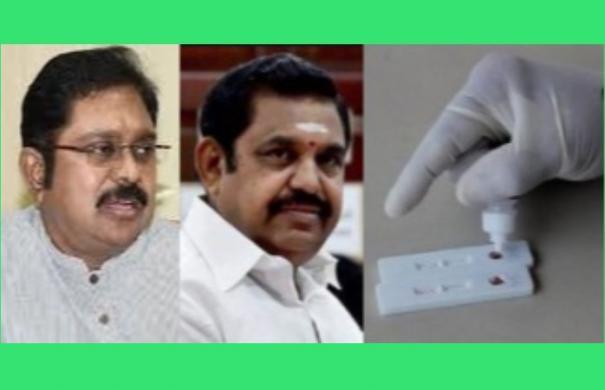 robbery-for-rapid-test-equipment-delhi-supreme-court-government-should-release-white-report-ddv-dinakaran