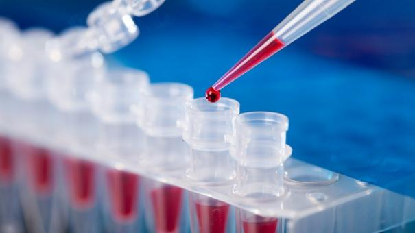 madurai-mp-slams-icmr-for-not-utilizing-pcr-lab-here