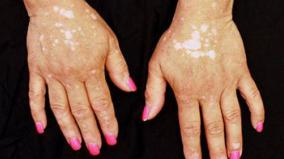 world-vitiligo-day