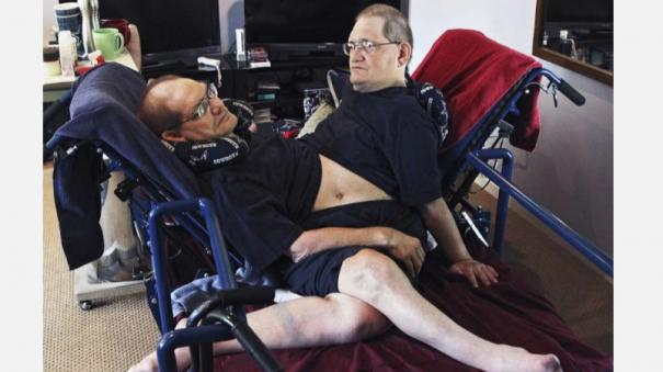 world-s-longest-surviving-conjoined-twin-brothers-die-at-68