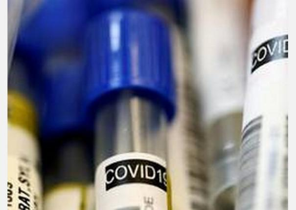 brazil-s-coronavirus-death-toll-surpasses-72-000