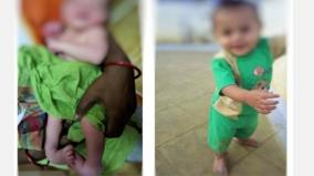 clubfoot-cured-in-covai-government-hospital