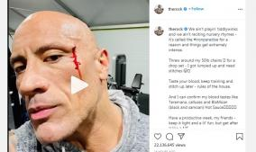dwayne-johnson-injures-face-while-working-out