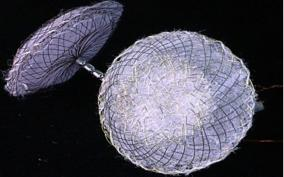 ballooning-of-brain-arteries-device