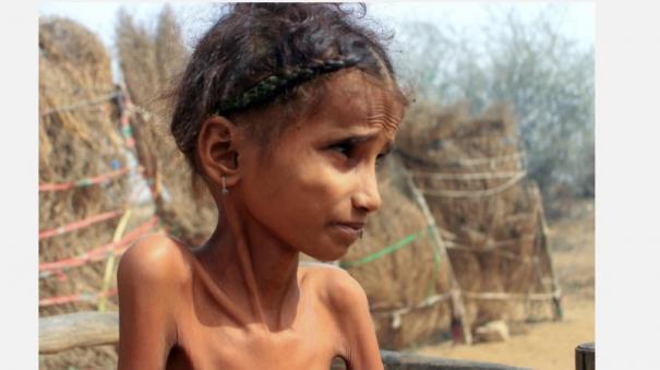half-of-yemen-under-5s-face-acute-malnutrition