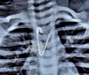 safety-pin-trapped-in-baby-esophagus-coimbatore-government-hospital-doctors-take-out-safely