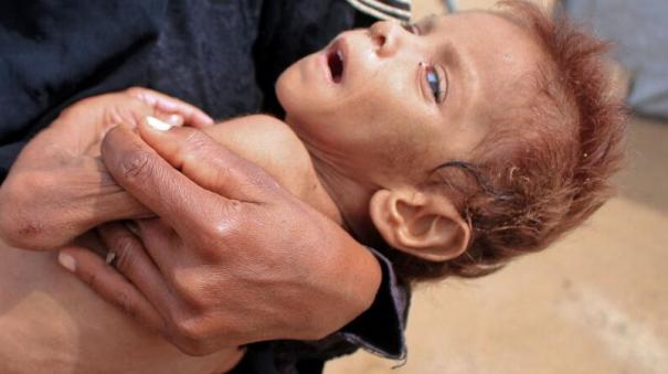 millions-of-people-around-the-world-risk-dying-of-hunger