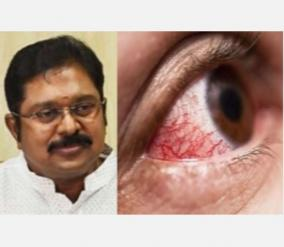 government-of-tamil-nadu-should-take-serious-action-to-control-black-fungus-ttv-dinakaran-insists