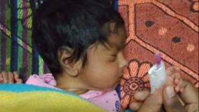14-day-old-child-s-thumb-amputation-at-government-hospital-court-orders-rs-75-000-as-interim-relief